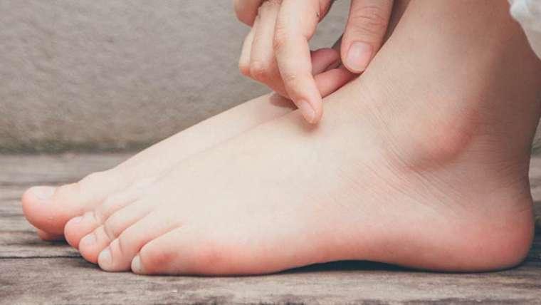 Platfus sau piciorul plat – ce complicatii pot aparea?
