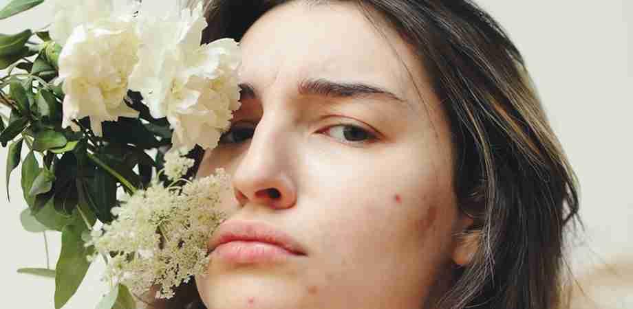 simptome acnee